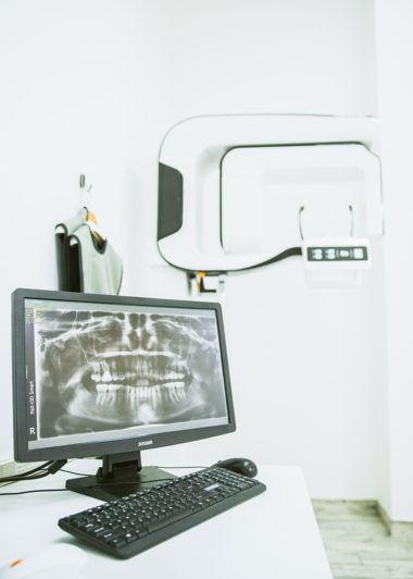Esthetic Dental Clinic - Rentgen zęba Toruń