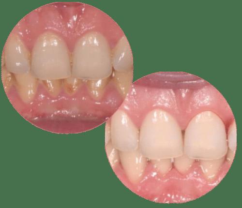 higienizacja toruń dentysta toruń cennik efekty higienizacji