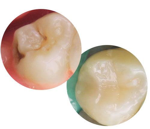 Leczenie odtworzenie koloru kształtu i funkcji zęba - Dobry dentysta Toruń Cennik