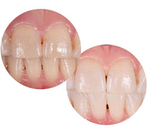 WYBIELANIE ZĘBÓW TORUŃ CENNIK - Dentysta Trouń
