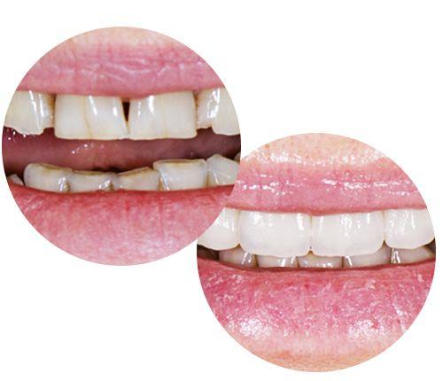 Licówki i korony cyfrowe Toruń - Implanty stomatologiczne ceny Toruń