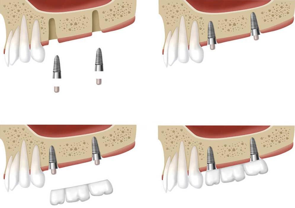 Wszczepianie implantów stomatologicznych Toruń - Dentysta implant