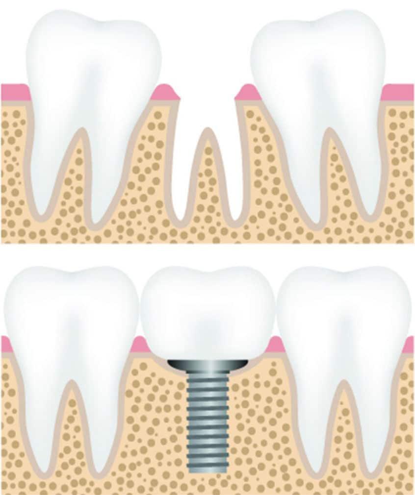 Implant stomatologiczny - sztuczne zęby