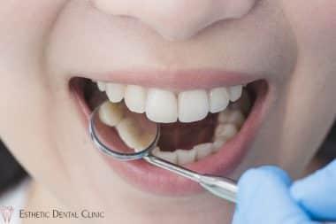 leczenie próchnicy zębów w gabinecie stomatologicznym Toruń