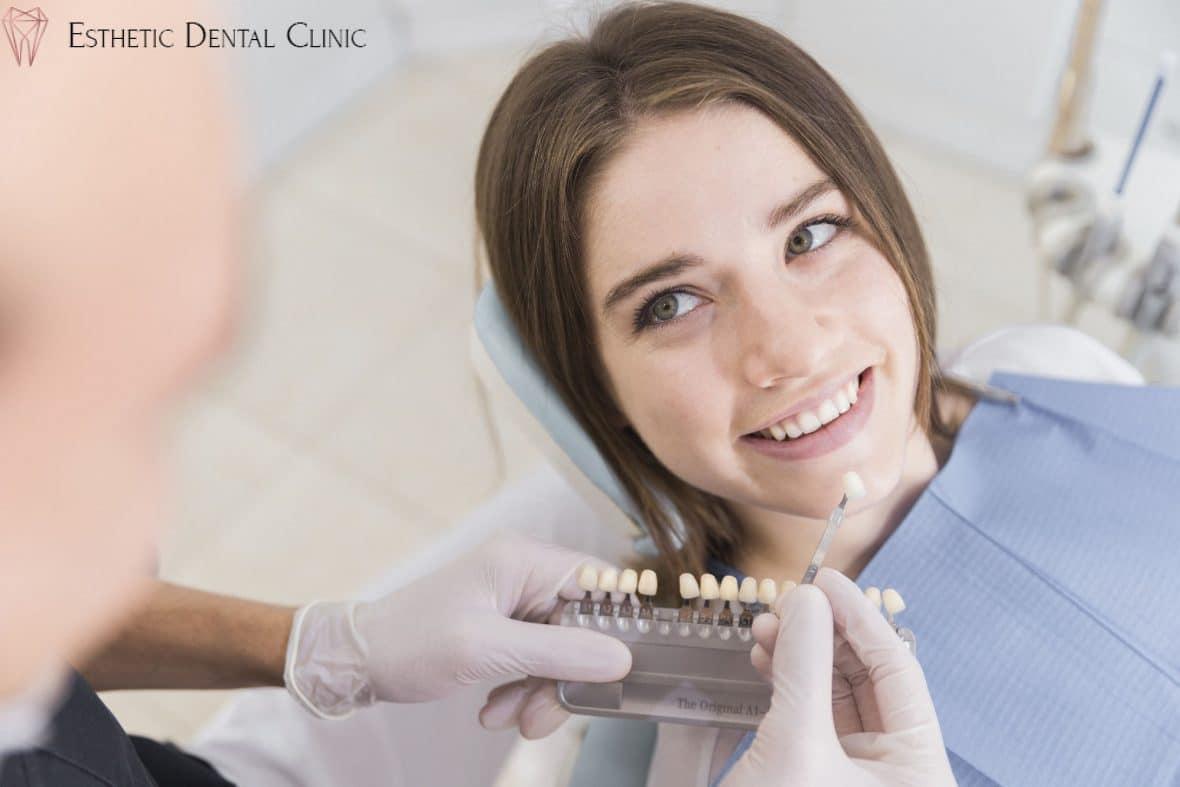 licówki stomatologiczne pokazywane w gabinecie dentysty