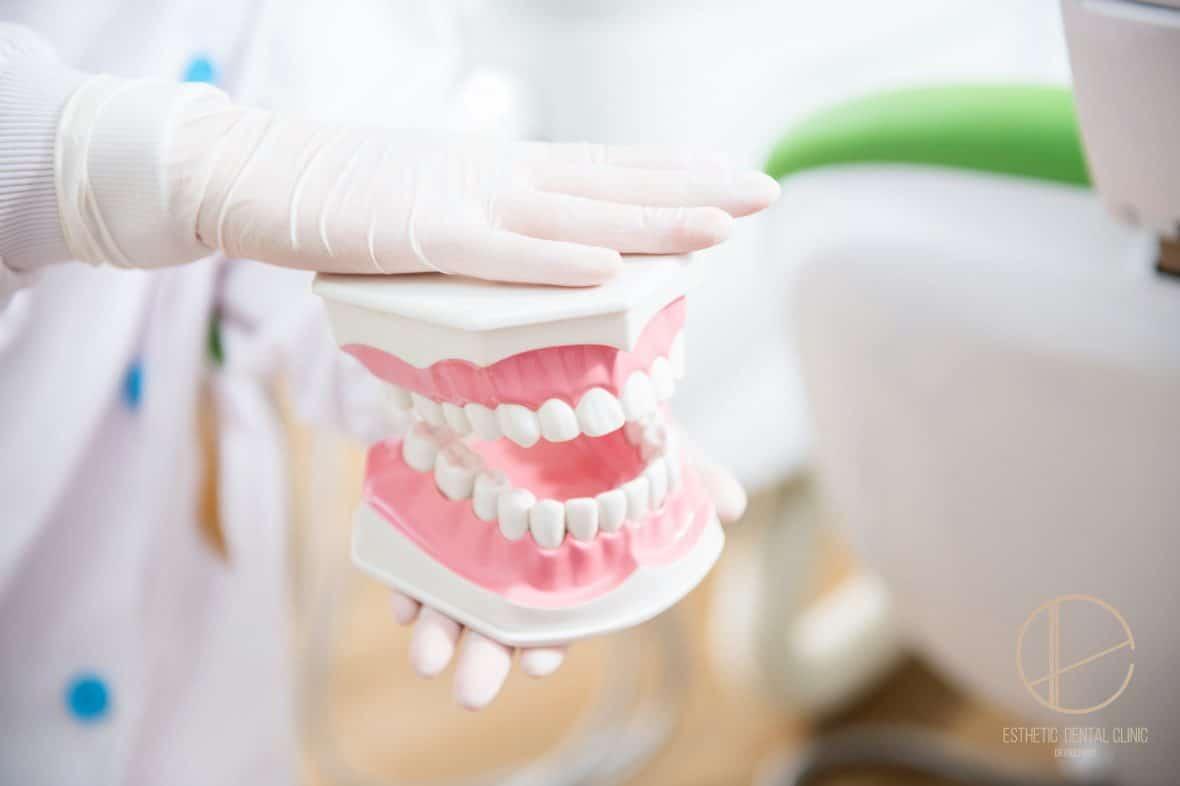 Jak dbać o zdrowie dziąseł - Dentysta Toruń