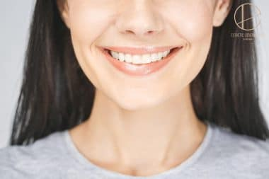 metody korygowania kształtu zęba w gabinecie stomatologicznym - Dentysta Toruń