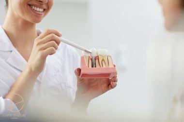 często zadawane pytania na temat implantów zębowych