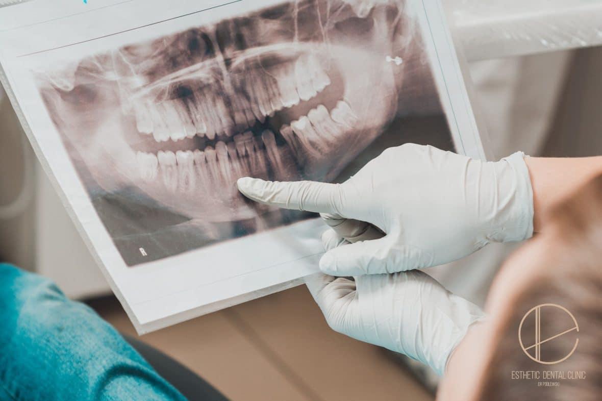 Jak przygotować się do zabiegu chirurgii stomatologicznej?