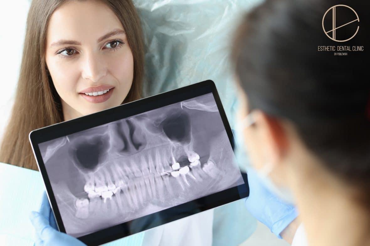 Wskazania do zdjęć RTG zębów - Dentysta Toruń