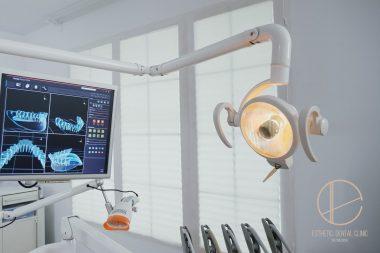 Nowoczesna diagnostyka w gabinecie Dentysta Toruń